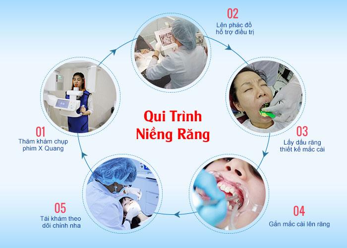 Quy trình niềng răng NQT
