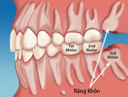 Ảnh hưởng khi răng khôn mọc bị lệch 1