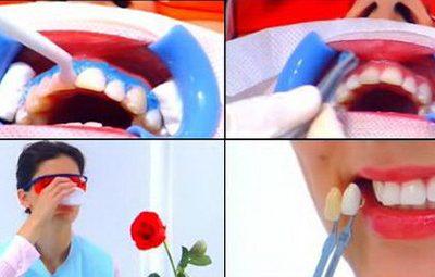 Các phương pháp tẩy trắng răng hiện nay