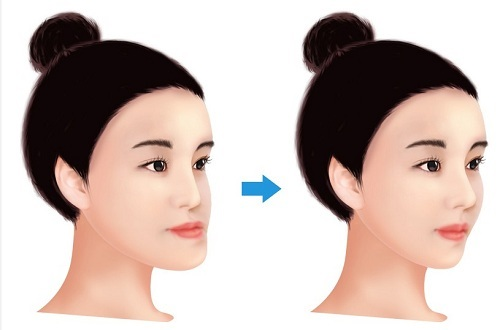 Cách chữa vẩu hàm dưới