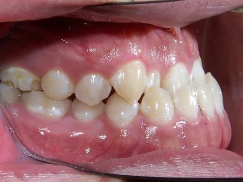 Cách khắc phục vẩu hàm dưới