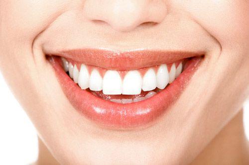 Cạo vôi răng - Giải pháp cho răng chắc khỏe 1