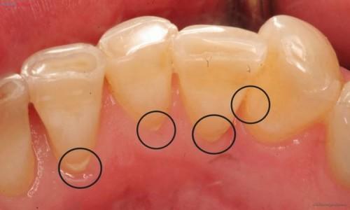 Cạo vôi răng - Giải pháp cho răng chắc khỏe 3