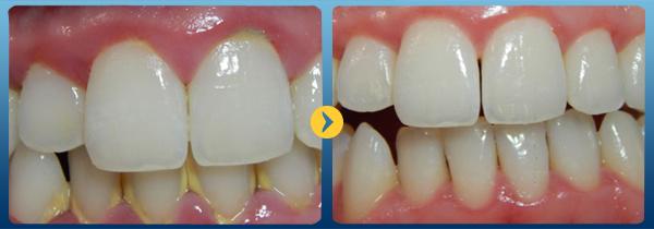 Cạo vôi răng bao lâu 1 lần? 2