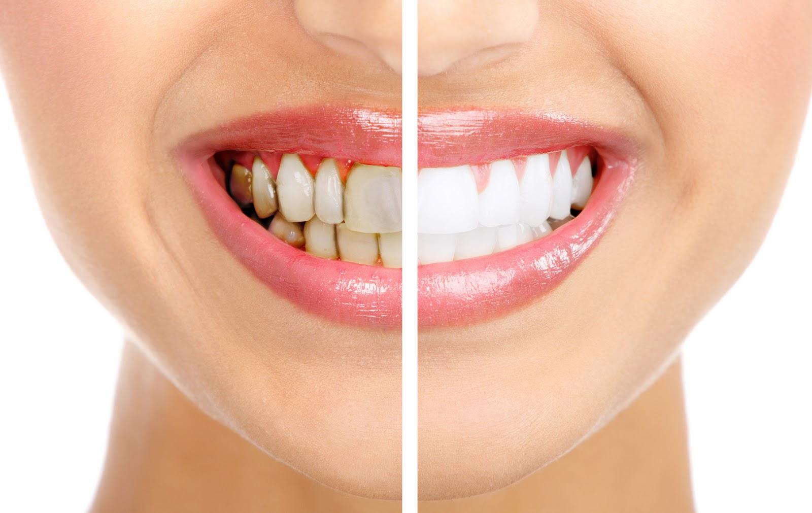 Cạo vôi răng bao lâu 1 lần? 3