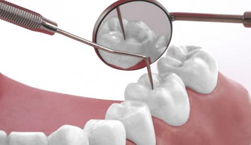 Cạo vôi răng có ảnh hưởng gì không? 2
