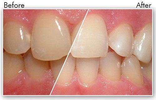 Cạo vôi răng có bị chảy máu không? 1