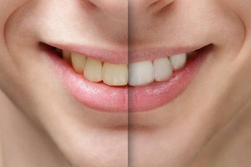 Cạo vôi răng có đau không? 1