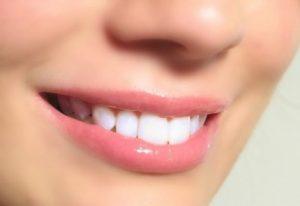 Cạo vôi răng có đau không? 3