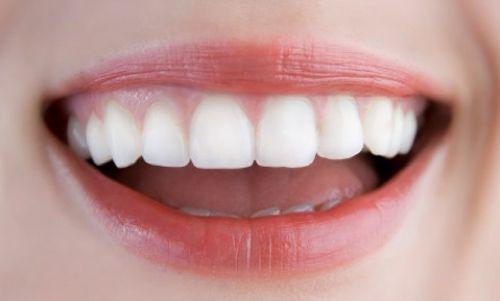 Cạo vôi răng có làm yếu men răng không? 1
