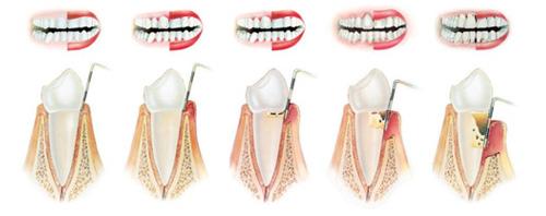 Cạo vôi răng có lợi hay hại? 1