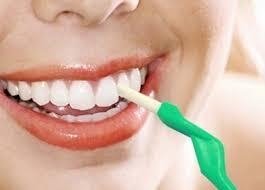 Cạo vôi răng có lợi hay hại? 2