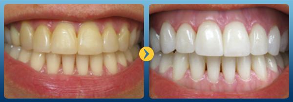 Cạo vôi răng có nguy hiểm không? 1