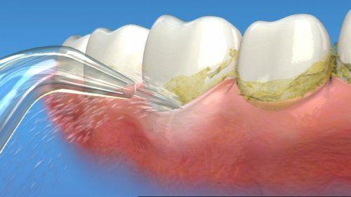 Cạo vôi răng có tác dụng gì? 1