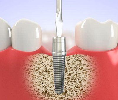 dia-chi-trong-rang-implant-tot-nhat-2