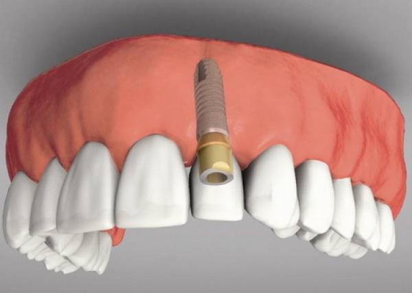 cay-ghep-rang-implant-nhu-the-nao-3