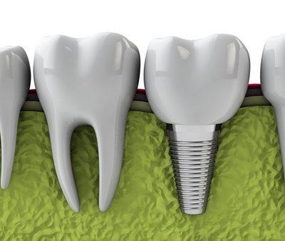 cham-soc-rang-sau-cay-implant-1