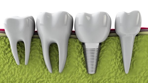 chăm sóc răng sau cấy implant
