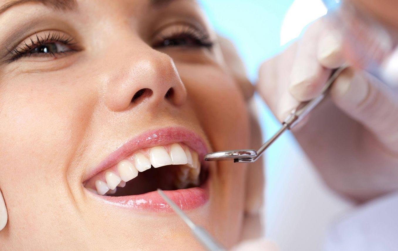 Chi phí cạo vôi răng 1
