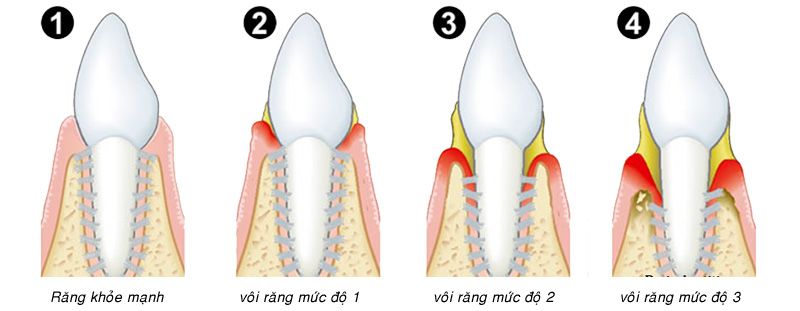 Chi phí cạo vôi răng 2