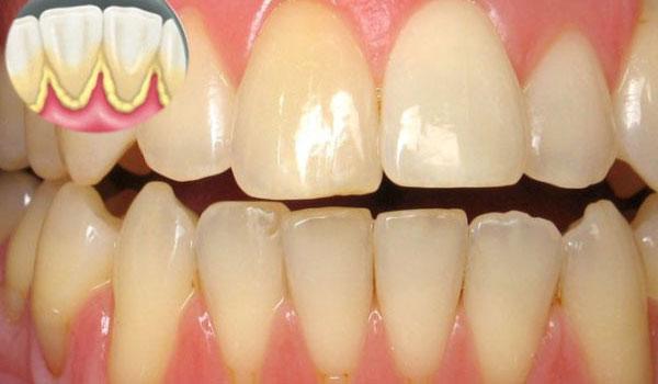 Có nên cạo vôi răng? 2