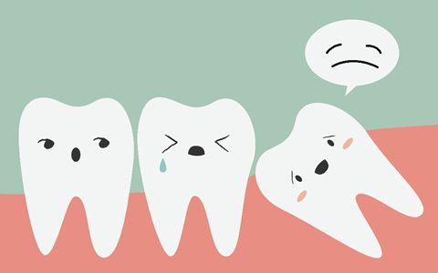 Có nên nhổ răng khôn? 1