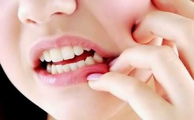 Dấu hiệu mọc răng khôn ở người lớn 1