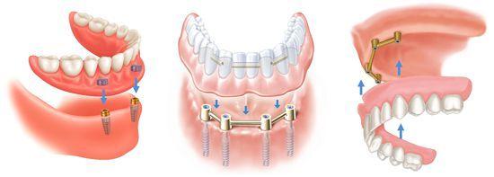 Địa chỉ trồng răng implant tốt nhất?