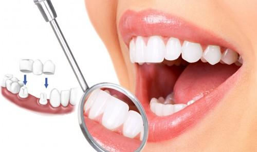 Dịch vụ làm răng sứ 1