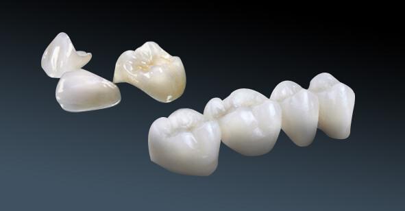 Dịch vụ làm răng sứ 3