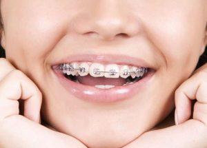 Giá niềng răng bao nhiêu tiền?