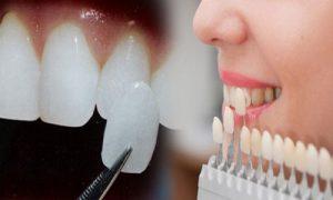 Giá răng sứ cao cấp