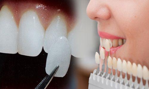 Giá răng sứ cao cấp 1
