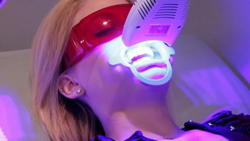 Giá tẩy trắng răng