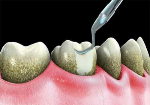 Kỹ thuật lấy cao răng bằng máy siêu âm 2