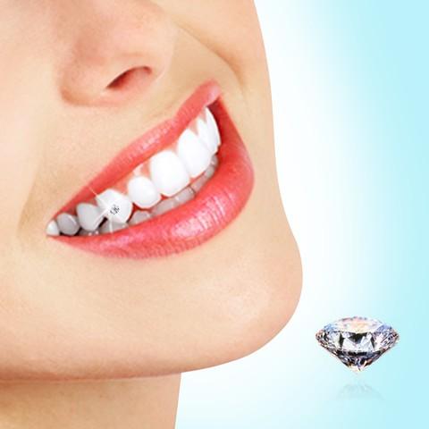 Lưu ý sau khi cạo vôi răng 1