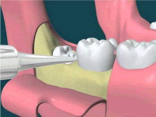 Nhổ răng khôn có đau không? 1