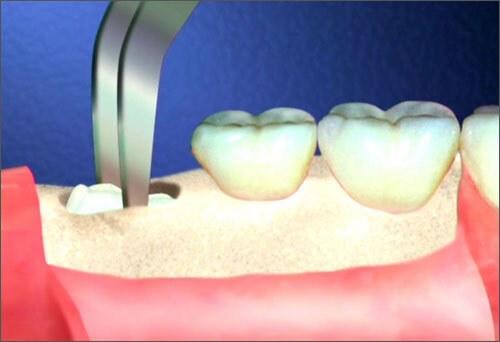 Nhổ răng khôn có nguy hiểm? 1