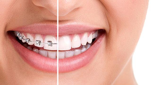 Niềng răng chỉnh nha công nghệ cao