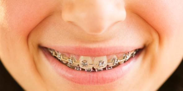 Niềng răng bao nhiêu tiền?