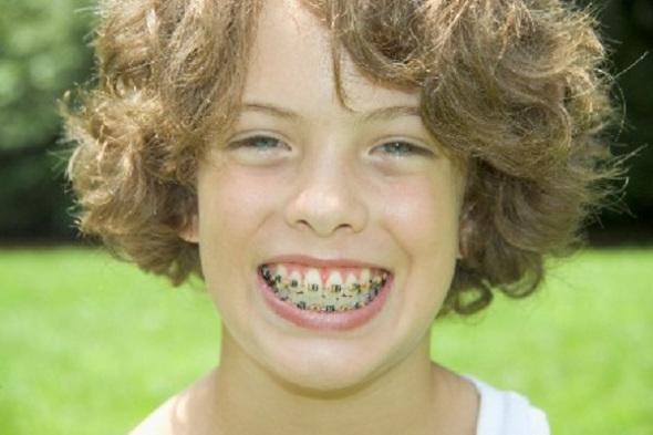 Niềng răng cho trẻ em ở đâu tốt?