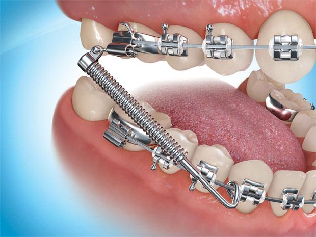 Niềng răng có làm răng yếu đi