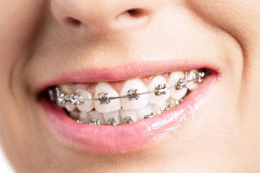Niềng răng hô theo tiêu chuẩn Y khoa