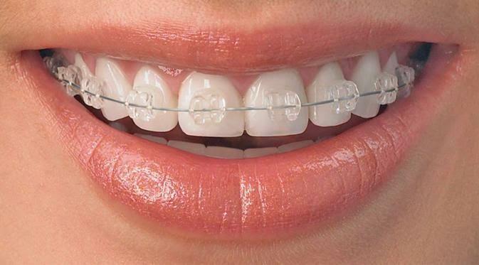Niềng răng mắc cài sứ thẩm mỹ và tiện lợi