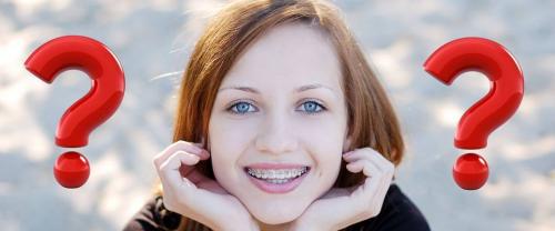Niềng răng mất bao lâu thời gian?