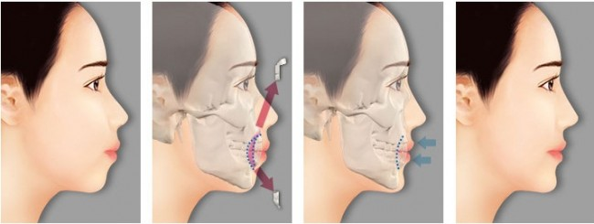 Phẫu thuật hàm hô bao lâu mới hồi phục?