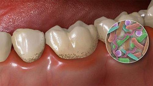 Quy trình cạo vôi răng 1