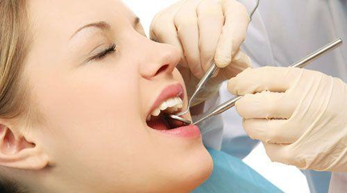 Quy trình cạo vôi răng 2