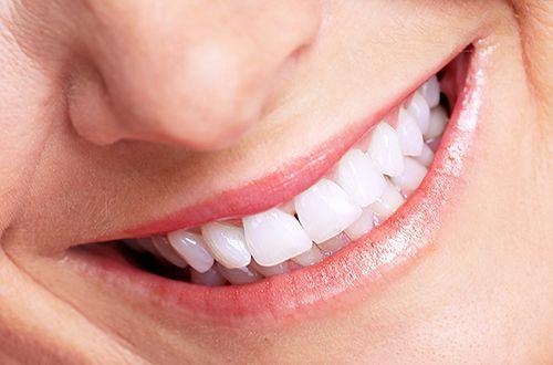 Quy trình cạo vôi răng 3