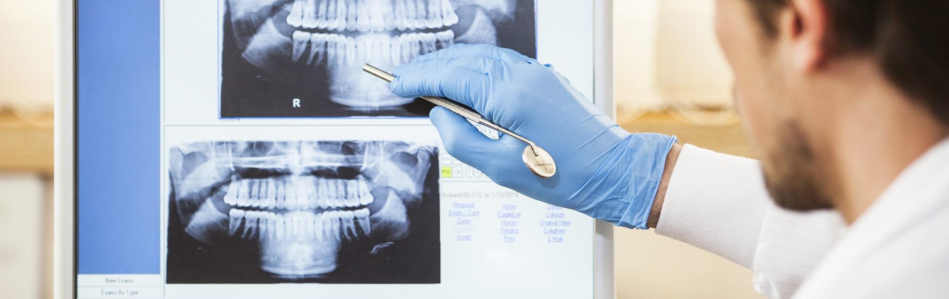 Quy trình phẫu thuật hàm hô như thế nào?